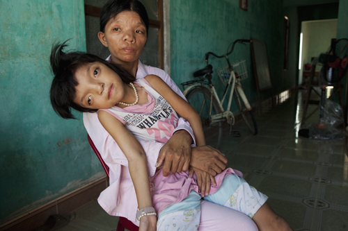 "Agent Orange Portrait, 2010: ""Nguyen Thi Ly and her mother, Le Thi Thu"""